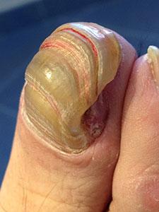 Onicogrifosis antes del tratamiento