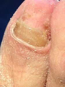 Onicogrifosis Después del tratamiento