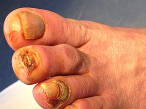 Ulceras-ungueales-Pie-Diabetico-1