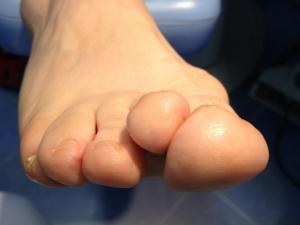 Dedos supraductus
