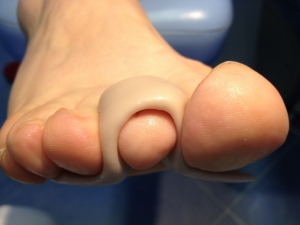 Colocación de silicona para corrección de dedos supraductus.